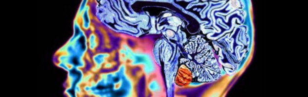 Morbo di Huntington, un impianto nel cervello per la cura