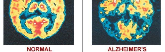 Alzheimer, Parkinson e schizofrenia: supercomputer per studiare e curare