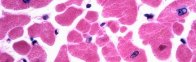 Infarto, in futuro un cuore potrebbe essere riparato con nuove cellule