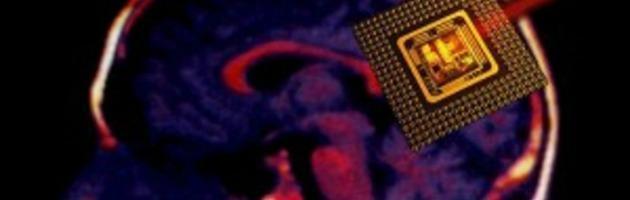 Parkinson ed epilessia, pronto il microchip per studiare i neuroni