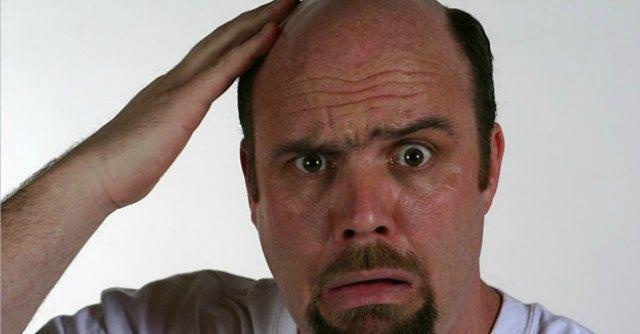 Calvizie, messo a punto metodo che induce crescita nuovi capelli