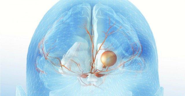 "Glioblastoma, ""scoperte proteine responsabili che avviano crescita"""