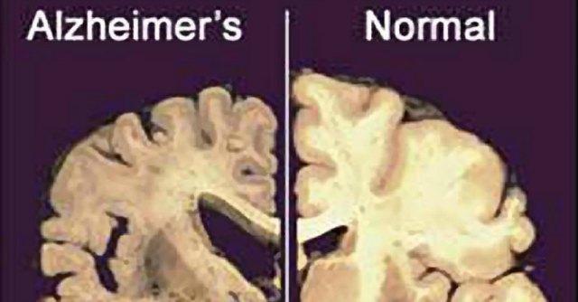 """Alzheimer, nanoparticelle come navi da guerra: """"Mirano ed eliminano le placche"""""""