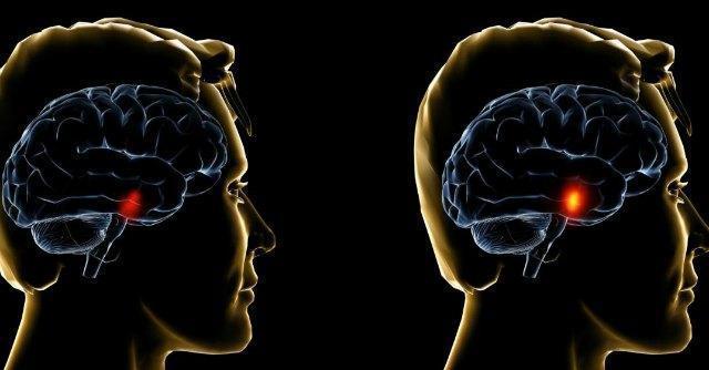 Parkinson, identificato meccanismo di morte neuronale