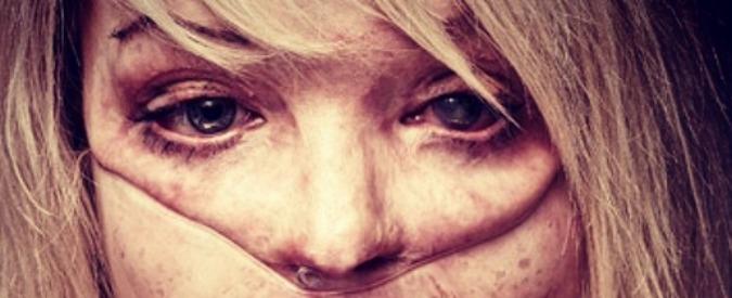 Katie Piper, su Instagram le foto dell'ex modella sfigurata dall'acido