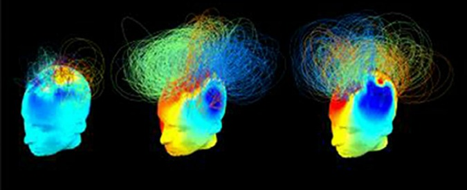 """""""Ecco l'area del cervello dove sorge il dolore"""". Per capire se chi è in coma soffre"""