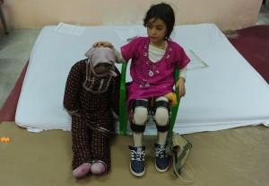 Vittime disabili di mine antiuomo in Afghanistan