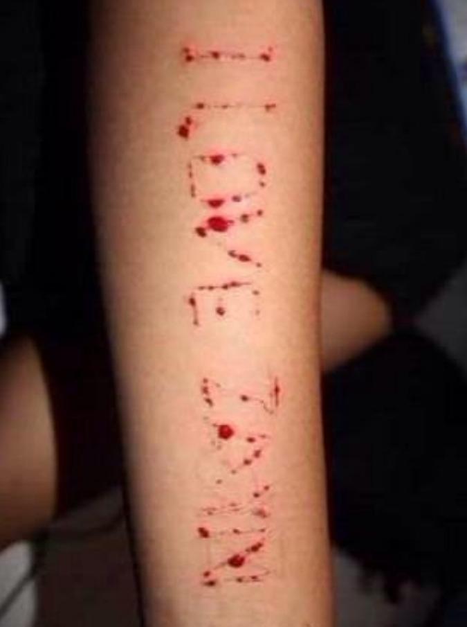 """One Direction, dopo l'addio di Malik le fan si 'tagliano i polsi': """"L'autolesionismo sta diventando una moda pericolosa"""""""