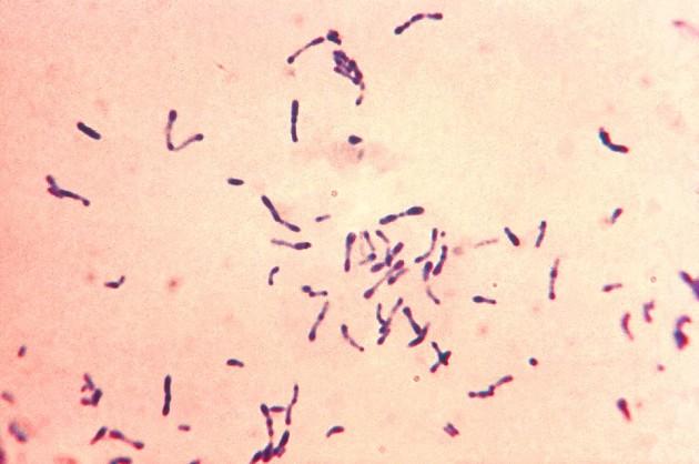 Corynebacterium_diphtheriae_Gram_stain
