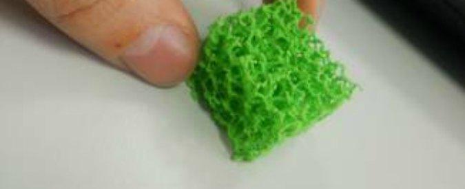 Ossa stampate in 3D, a Bologna impiantante le prime protesi in Italia