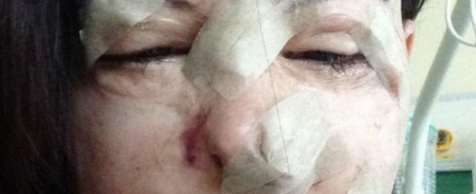 Lucia Annibali pubblica la sua foto dopo il 16esimo intervento: 'Per non dimenticare'