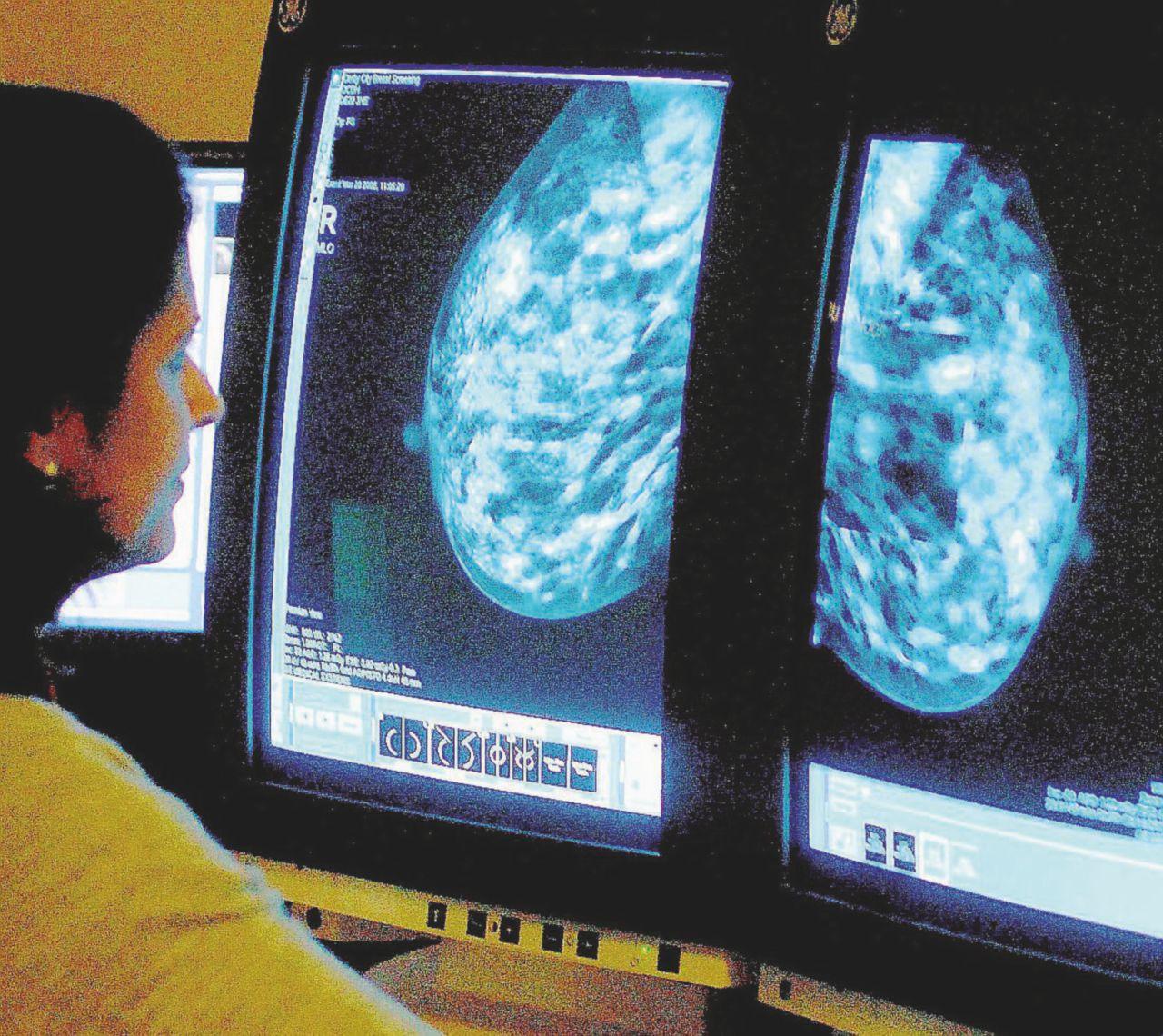 """""""Imbrogli contro il cancro: ho visto dieci donne morire"""""""