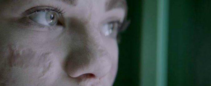 Bebe Vio testimional in tv mostra il viso senza ritocchi. E' l'inizio di una rivoluzione?