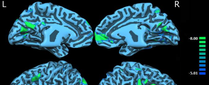 In stato vegetativo da 15 anni, recupera uno stato minimo di coscienza grazie alla stimolazione del nervo vago