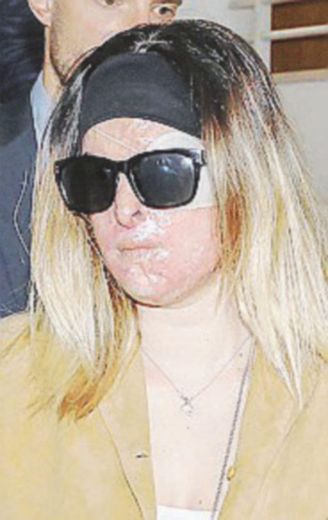 """Sfregiò la Miss con l'acido, condannato a 10 anni. Lei: """"Non conta, mi ha rovinata"""""""