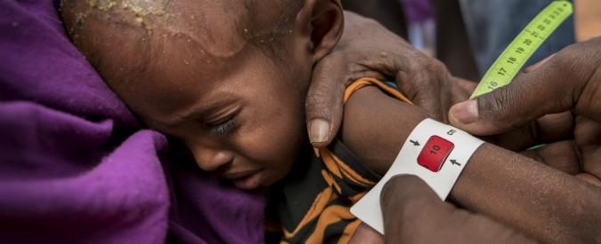 Giornata della malnutrizione, nel mondo 155 milioni di bambini soffrono carenza di cibo: 3 milioni i morti ogni anno