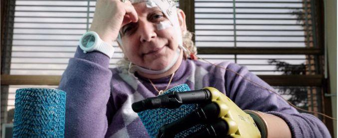 """Mano bionica impiantata alla prima italiana: """"È come se fosse tornata la mia"""""""