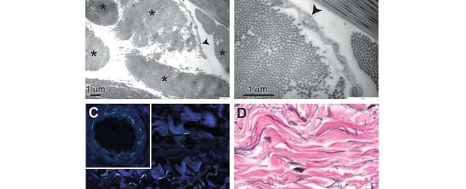 Anatomia, scoperto un nuovo organo: interstizio. Tra i più grandi del corpo, potrà spiegare tumori e invecchiamento