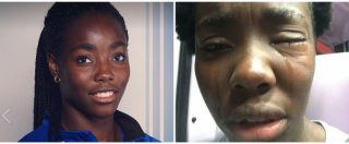 """Daisy Osakue, ferita azzurra di atletica: colpita da un uovo. Gli inquirenti: """"Già due casi con vittime bianche"""""""