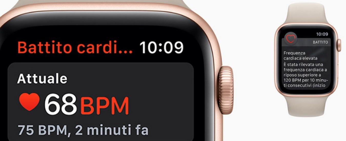 L'Apple Watch può contribuire a identificare una cardiopatia? Screening di massa della Standford University