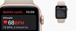 Apple Watch Serie 4 porta in Italia l'elettrocardiogramma da polso
