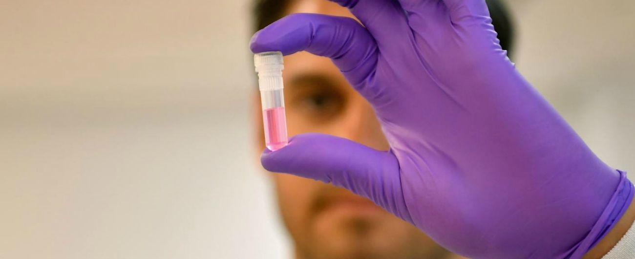 """Tumori, """"identificata la proteina che evita i problemi nella replicazione del Dna"""""""