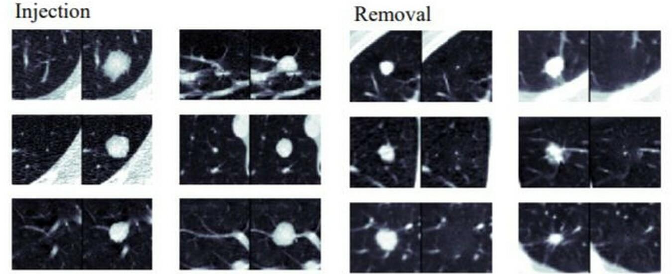 Radiografie infettate dai virus informatici, il cancro non c'è ma si vede