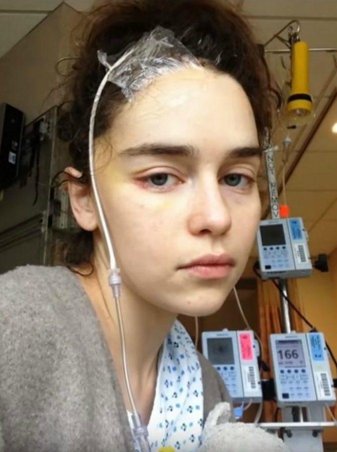 """Emilia Clarke, le foto choc della star di Game of Thrones dopo i due aneurismi: """"Un pezzo del mio cervello è morto"""""""