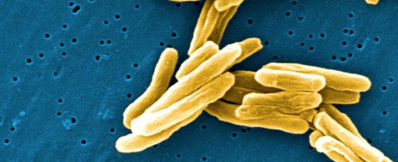 La tubercolosi, questa sconosciuta
