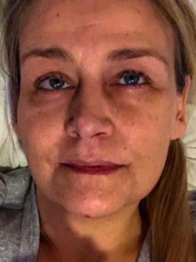Toglie una zecca al suo gatto ma viene morsa dal parassita: donna prende la malattia di Lyme e resta invalida