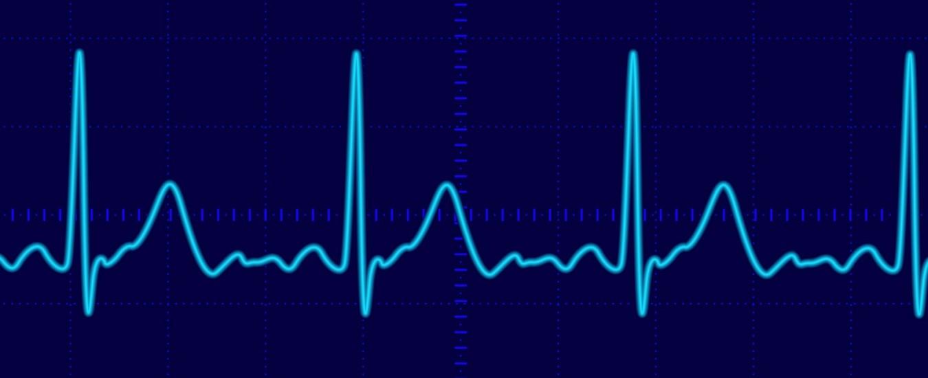 Il battito del cuore identifica univocamente una persona, Jetson è un laser che può rilevarlo a distanza