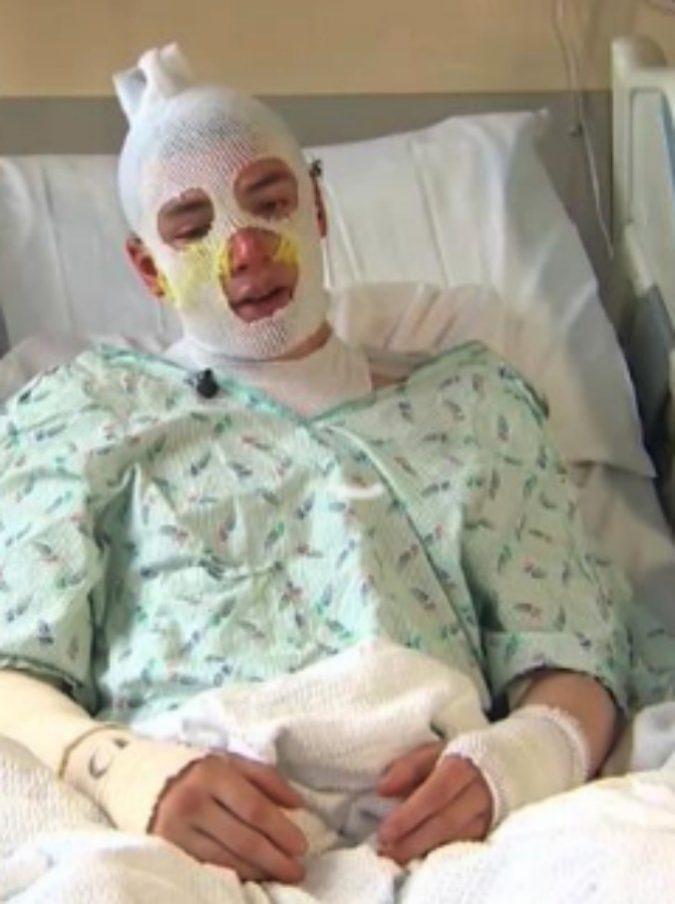 """Ventenne salva la nipotina da un incendio, ustionato in tutto il corpo: """"Lo rifarei anche se dovessi morire"""""""