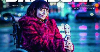 """Cuore di bambola, storia di LuluRimmel che fa la cantante e ha le ossa fragili: """"Odio le etichette. Tutti possono rispecchiarsi nella mia vita"""""""