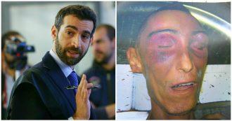 """Stefano Cucchi, il pm: """"Perse 6 kg in 6 giorni, non mangiava per il dolore. Fu un pestaggio degno di teppisti da stadio"""""""