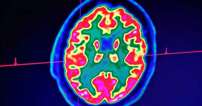 Alzheimer, studio lavoro ed esperienze: anche così ci si può difendere dalle demenze