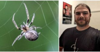 Ha le vertigini e forti dolori: ragazzo di 27 anni scopre che un ragno gli era entrato nell'orecchio di notte