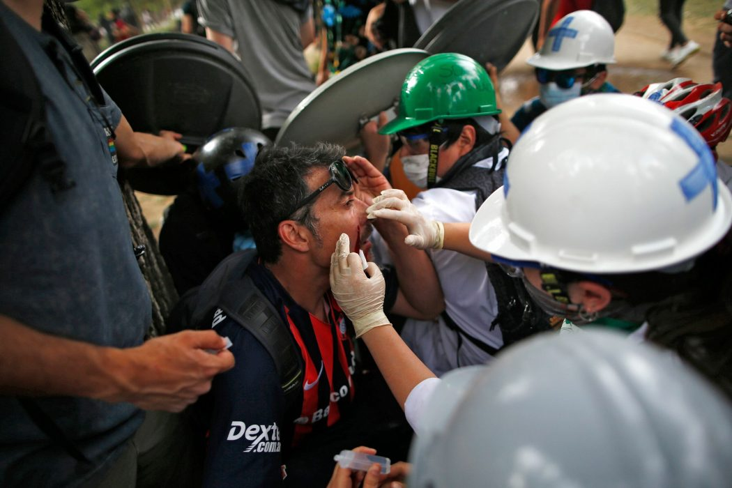 An injured demonstrator is assisted in Santiago, on October 25, 2019, a week after violence protests started. – Demonstrations against a hike in metro ticket prices in Chile's capital exploded into violence on October 18, unleashing widening protests over living costs and social inequality. (Photo by Pablo VERA / AFP)