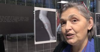"""Violenza sulle donne, a Milano la mostra 'Raggi X': """"Con queste immagini raccontiamo un orrore nascosto"""""""