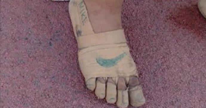 Undicenne corre con scarpe fatte di bende e gesso perché non può permettersi quelle vere: vince tre medaglie d'oro