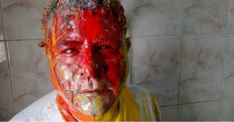 """Egitto, l'attivista aggredito dai servizi: """"Pestato e umiliato per strada. Non ho fatto la fine di Regeni perché regime teme nuovo scandalo"""""""