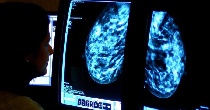 """Crescono i casi di tumore rispetto al 2019: sono 377mila. L'aumento colpisce solo le donne. Speranza: """"Tanto lavoro da fare"""""""