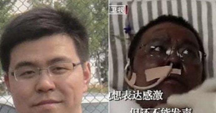 In terapia intensiva per il Covid, si era risvegliato con la pelle scura: ecco come sta ora il medico-eroe di Wuhan