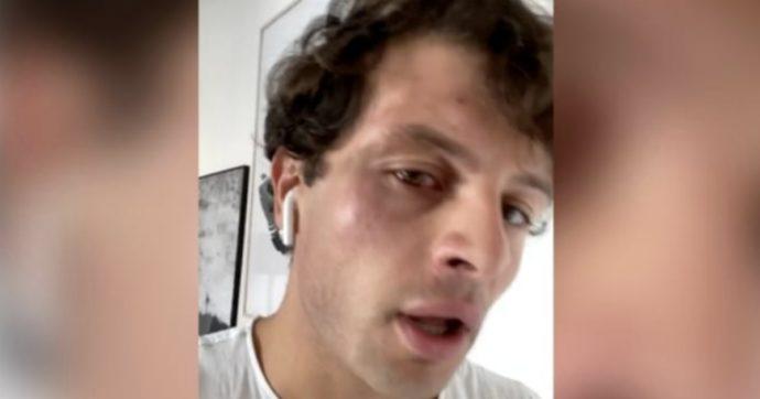 """Iconize ammette il finto pestaggio omofobo: """"Non ho usato il surgelato, era autolesionismo. Mi assento dai social e mi farò aiutare"""""""