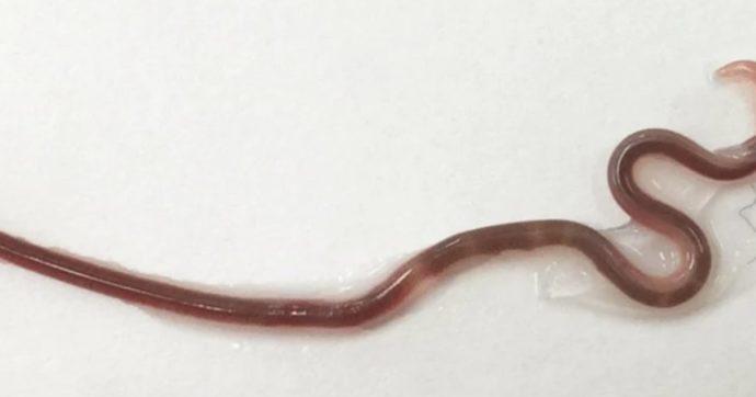 """Mangia sashimi e si ritrova nella gola un """"verme nero"""" di 38 mm"""