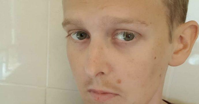 """""""Il mio cancro è incurabile ma voglio dirvi questo"""": le parole di Elliot, 29 anni"""