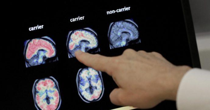 """L'allarme della Federazione Alzheimer: """"Fondi e studi bloccati, il Covid ha messo in stand by la ricerca sulla demenza"""""""