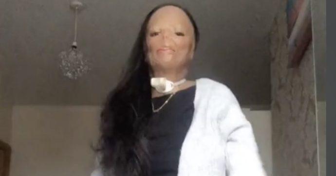 Lo shampoo contro i pidoocchi prende fuoco: dopo due mesi di coma si risveglia sfigurata, poi diventa una star di TikTok