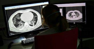 """Covid, """"le cellule nel polmone si fondono e creano una nuova struttura in modo mai visto prima"""""""