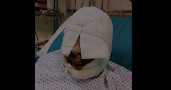 """Gessica Notaro mostra in un video il suo volto prima e dopo l'aggressione: """"Immagini forti ma servano da monito"""""""