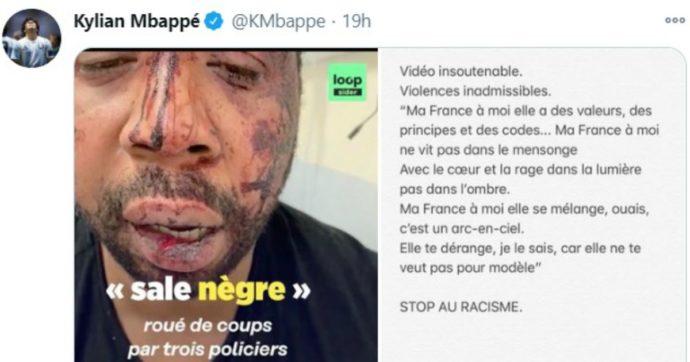 Francia, il produttore Michel Zecler picchiato brutalmente dalla polizia per 15 minuti. Il video incastra gli agenti: quattro fermati